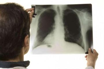La Sociedad Argentina de Infectología denunció la falta de drogas para la tuberculosis