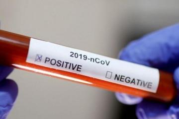 """Coronavirus: cambia la definición de """"caso sospechoso"""" y se harán más test"""