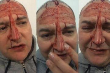 Denuncia: Leo García sufrió un brutal ataque homofóbico en General Rodríguez